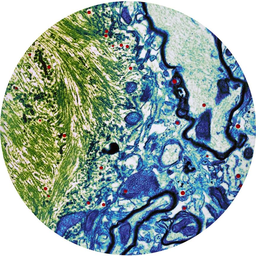 Plaque Biopsy, detail  2015