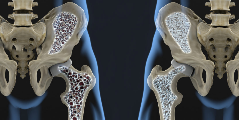 The effects of osteoporosis on hip joints