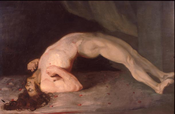 A painting by artist and doctor Sir Thomas Bell depicting a soldier he treated who had caught tetanus from a bullet wound.