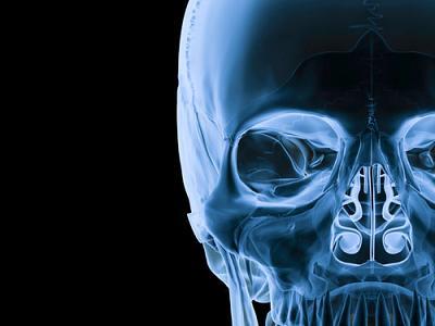 Radiology, Medical Imaging