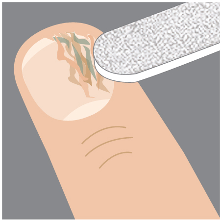 Step 1: File down the over-grown nail in order to fully penetrate into the treatment site.
