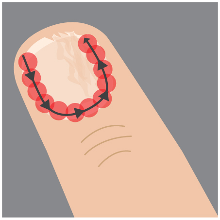 Step 3: treat the skin tissue surrounding the nail to prevent recurrence.