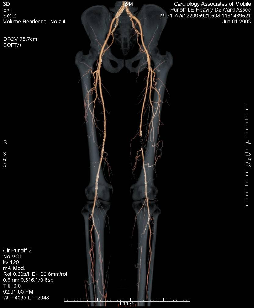 Leg Picture.jpg