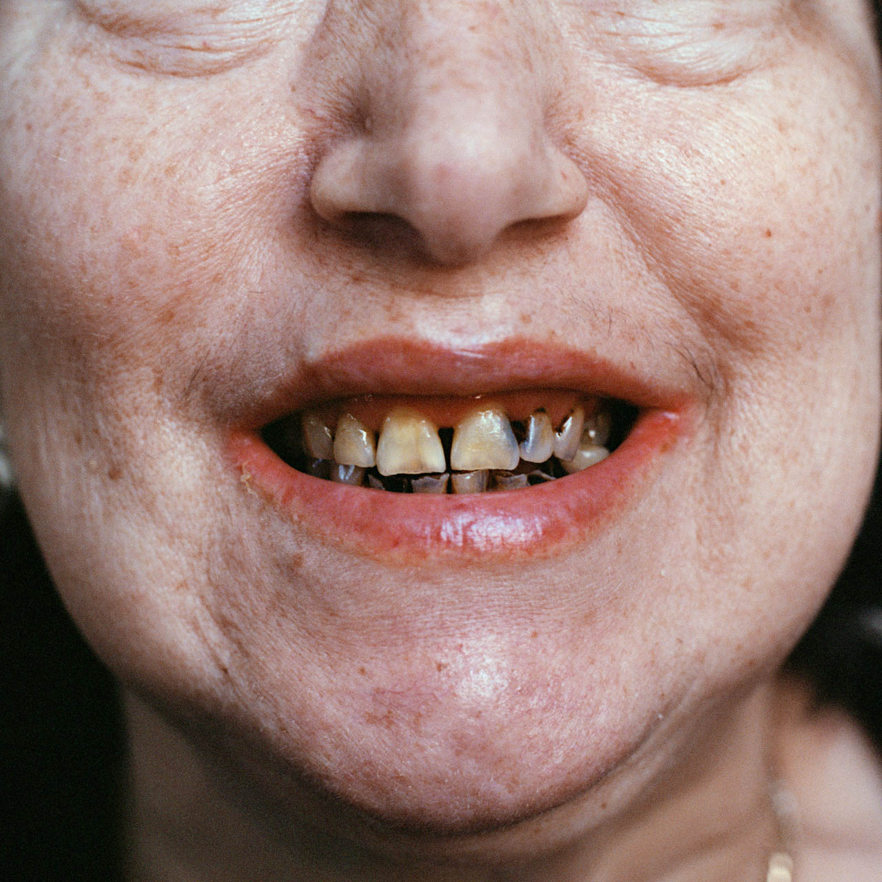 EdelmanBrier_11_teeth.jpg