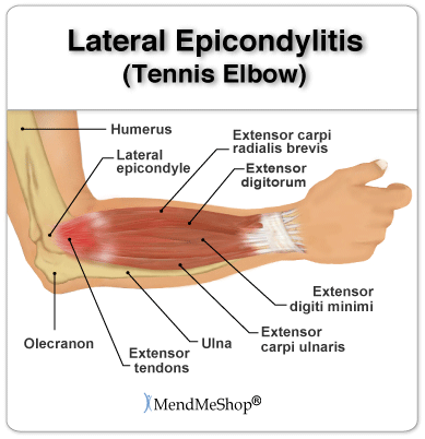 Tennis Elbow: Tendinosis on the Outside of the Elbow (lateral)
