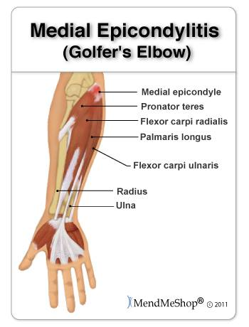 Golfer's Elbow: Tendinosis on the Inside of the Elbow (medial)