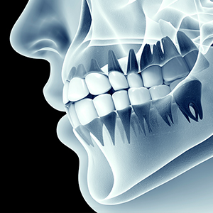 Dentures 300 300.jpg