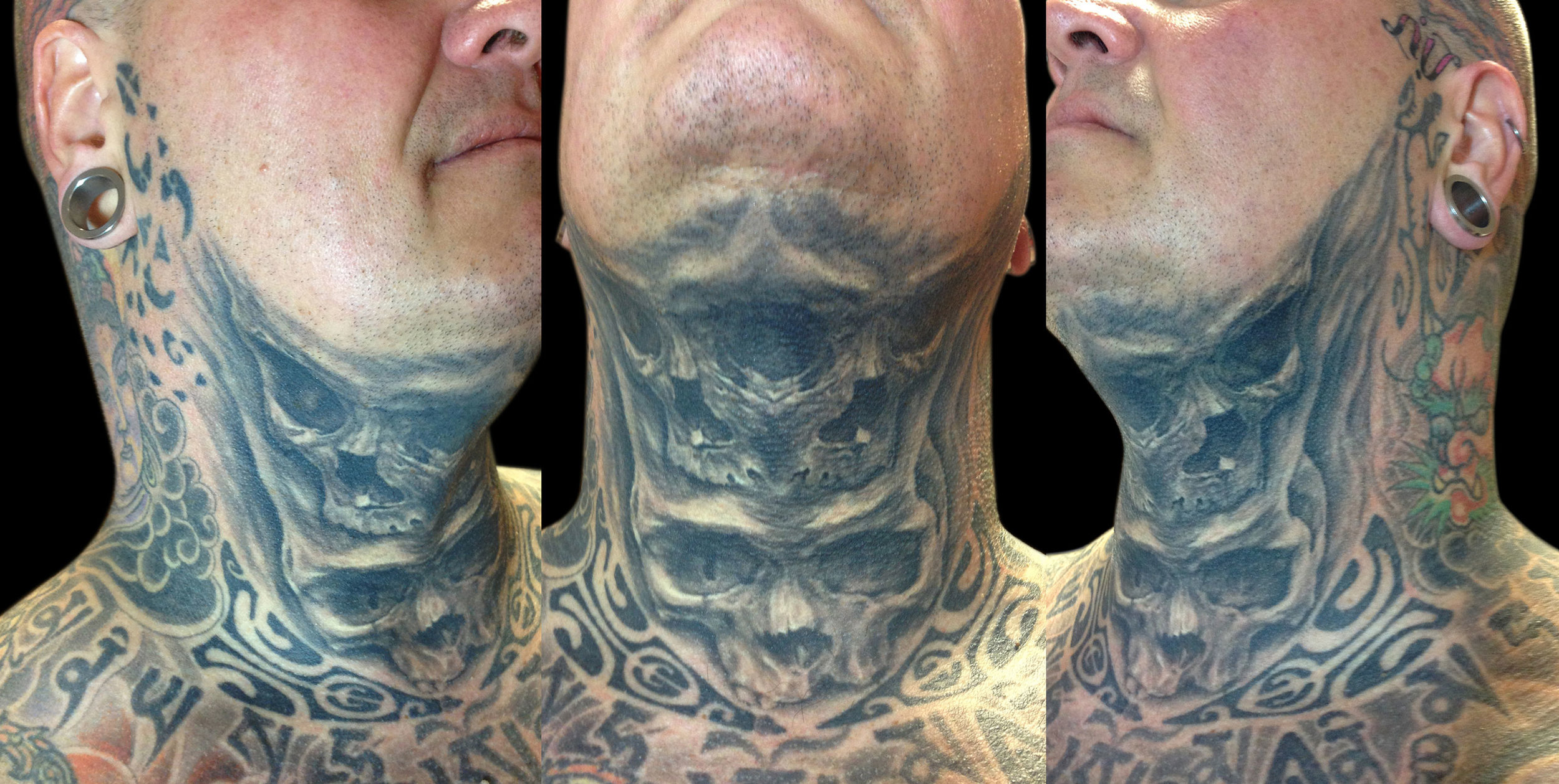 Black and Grey Mirror Throat Skull Tattoo, (healed)
