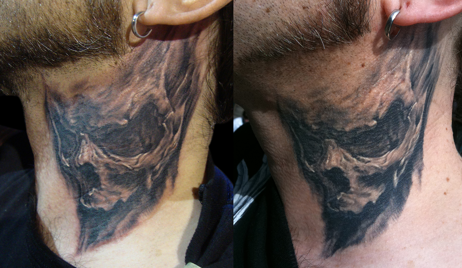 Black and Grey Neck Skull Tattoo, (fresh photo on left, and healed photo on right) International London Tattoo Convention, UK