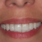 Bonded Porcelain Crowns – Total Reconstruction