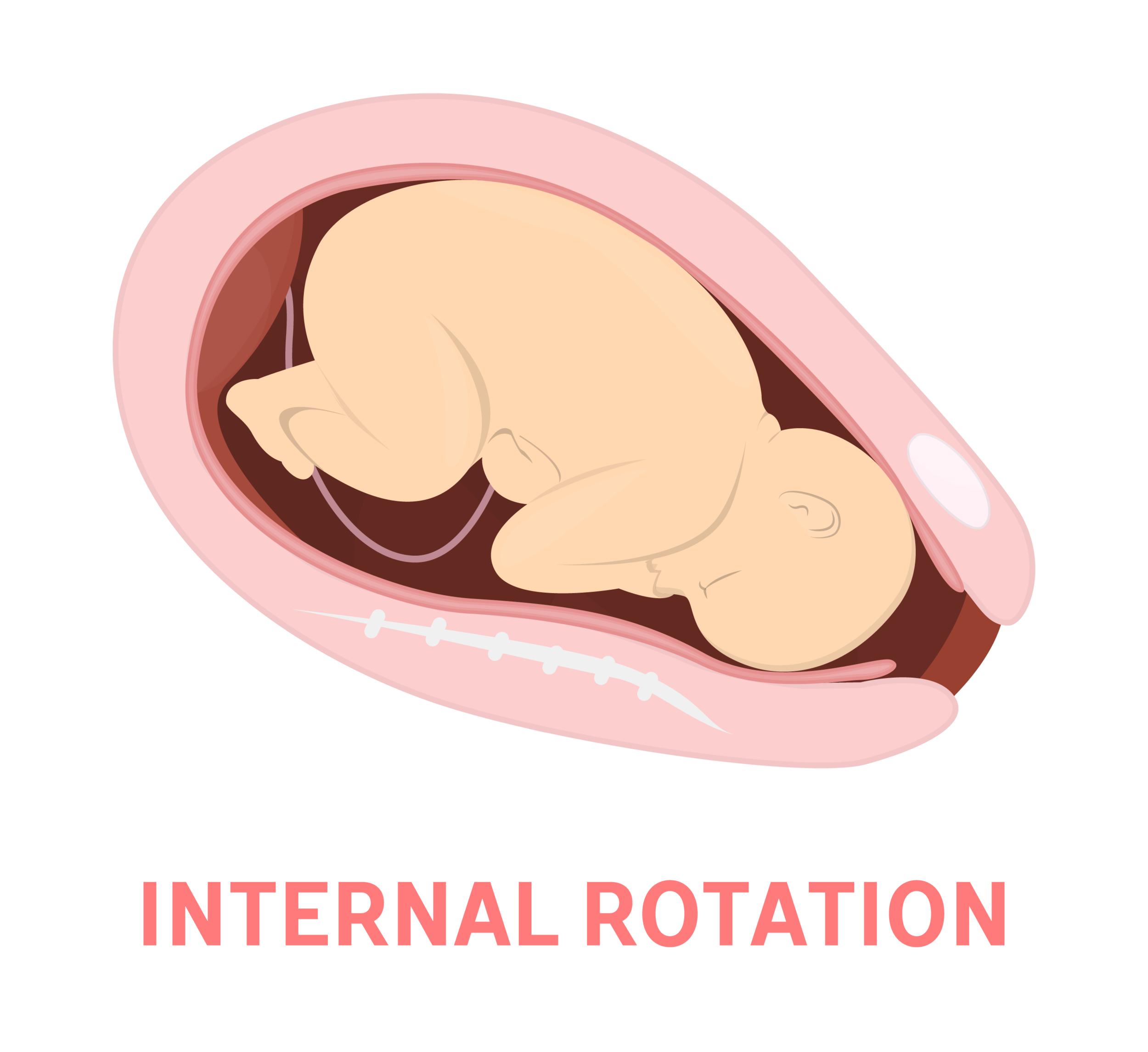 Internal Rotation.png