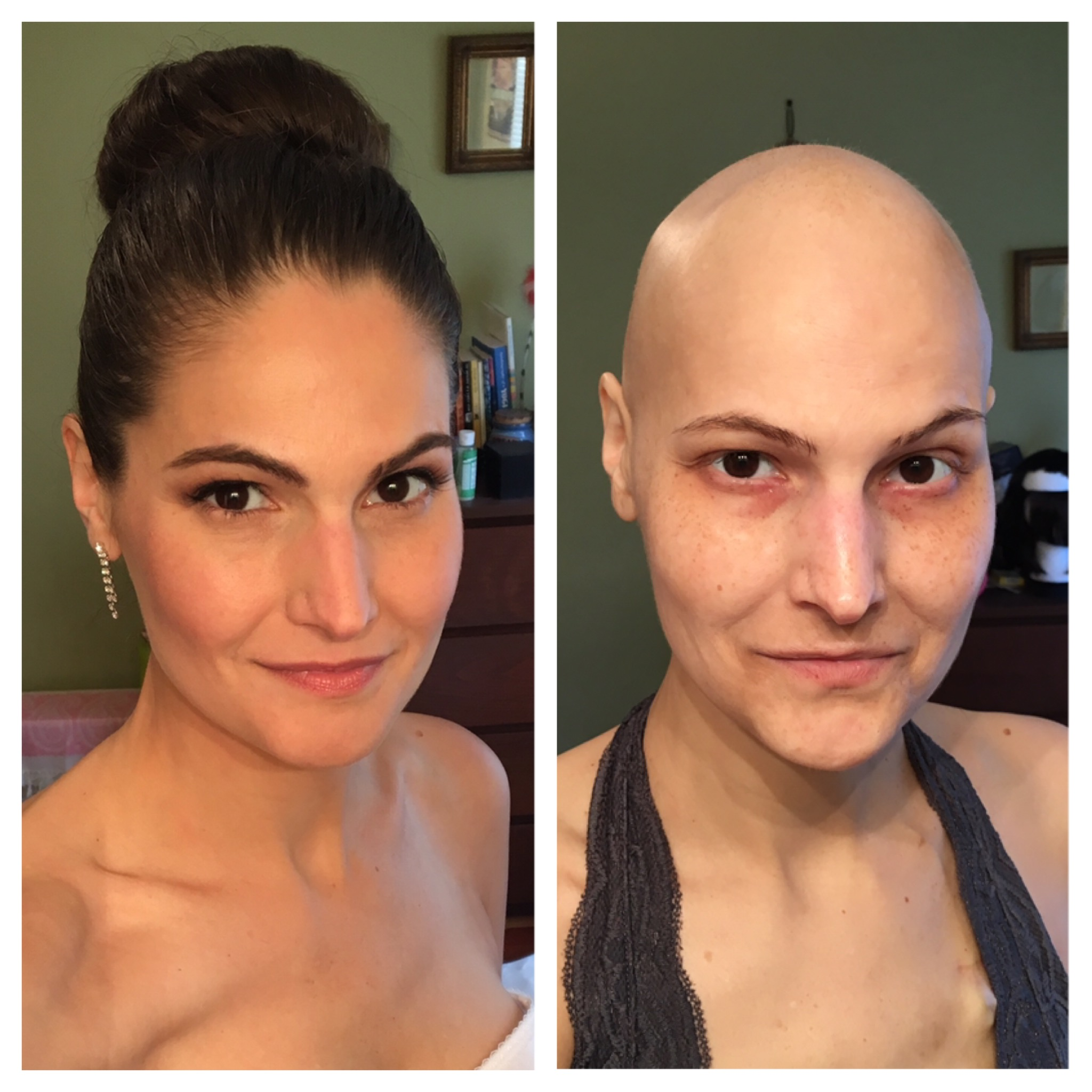 I thought I'd be cute and post a before and after chemo shot. The one on the right was taken 11/20/16, three days before I started. The one on the left was taken today, 4/8/17, 12 days after I finished. It's been a little over 4 months.