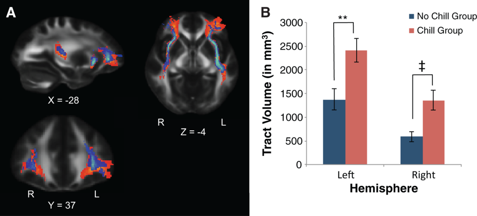 """Larger tract volume from pSTG to aIns and mPFC in Chill responders: (A) Diffusion tractography showed increased tract volume between auditory perception regions in the STG and emotional and social processing regions in the aIns and mPFC. (B) Tract volume between the STG, aIns and mPFC was significantly larger in individuals who frequently experience chills in response to music compared to matched controls. ** P  < 0.01 uncorrected. ‡  P  < 0.05 after Bonferroni correction. Error bars denote standard error."""