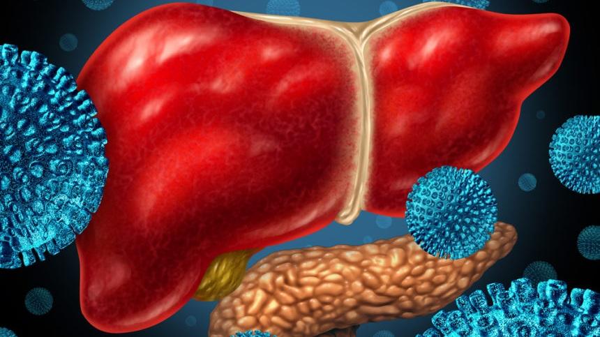 hepatitisliverpancreas_1234467-860x599.jpg