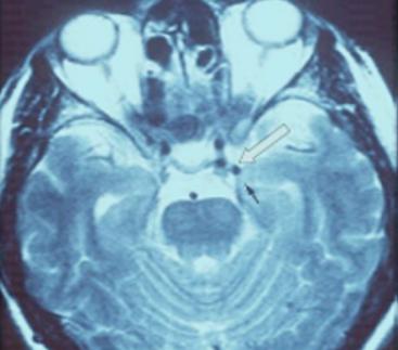 RMN Encefalo:    solo se si sospetta una forma secondaria (esempio: aneurisma della arteria comunicante posteriore di sinistra)