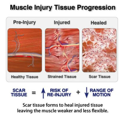 muscle-tissue-omaha-chirosport.png