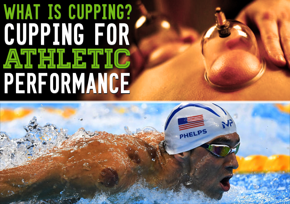 cupping-chirosportne.png