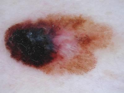 Superficial Spreading Melanoma Picture