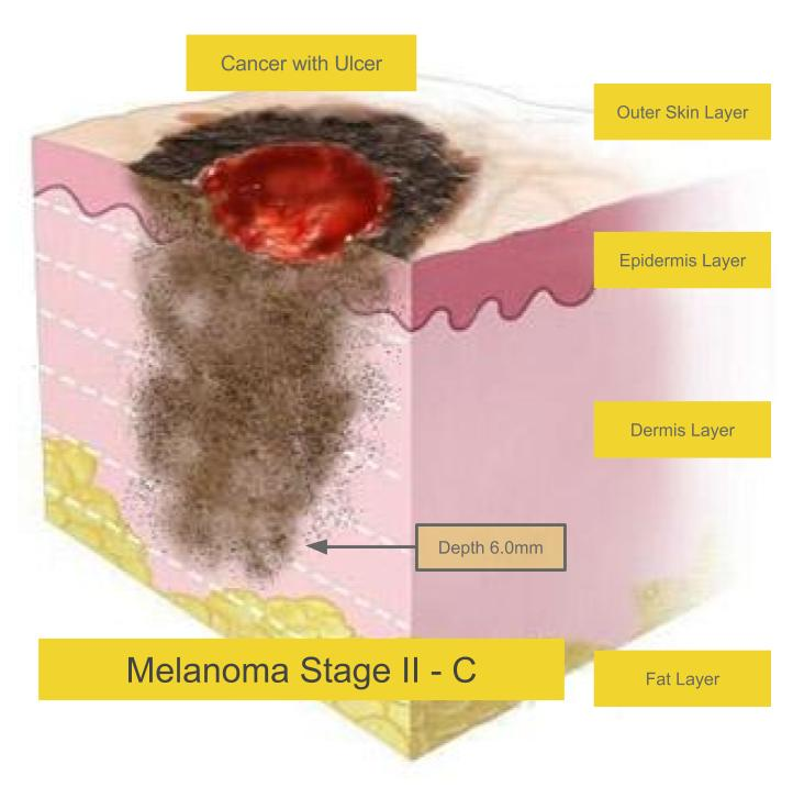Melanoma Stages
