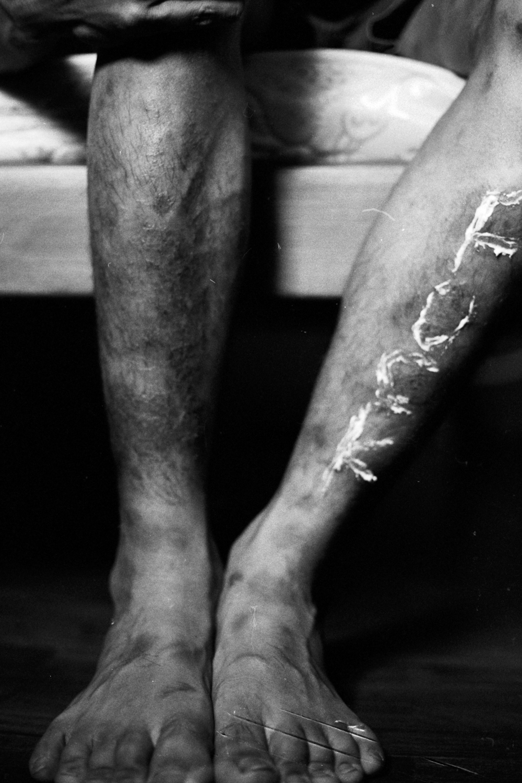 EczemaDisaster_008.jpg