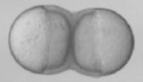 fused blastulae.jpg
