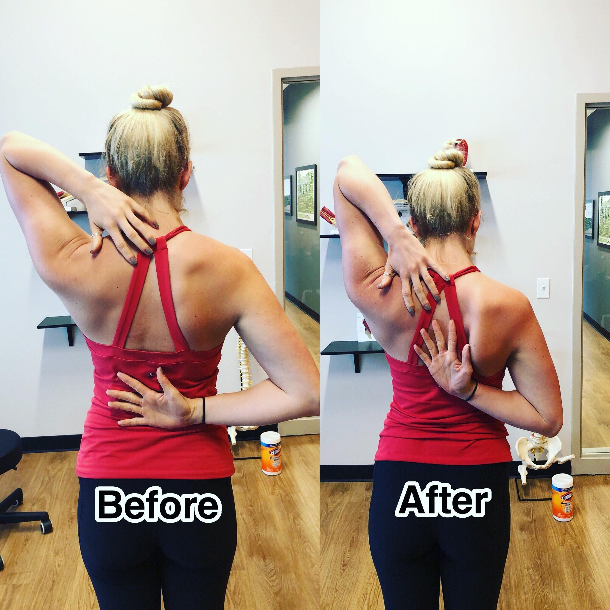 Shoulder Pain Portland, OR.jpg