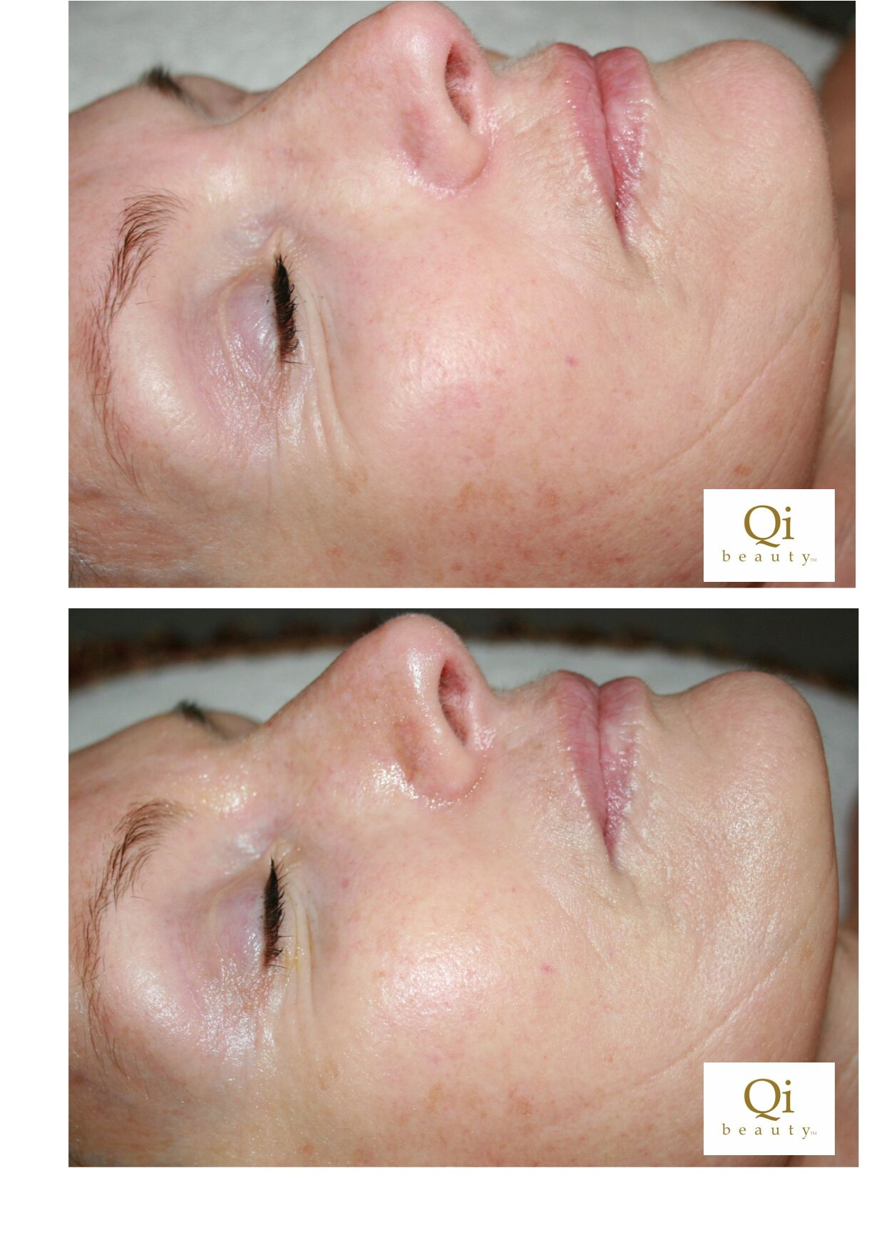 Qi beauty Treatments assist reducing skin redness, skin inflammation, smoothing skin, and bringing volume into areas. Qi beauty detoxifies skin giving it a clear, natural glow.