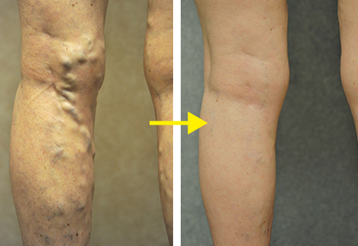 BEFORE & AFTER ( patient treated at VeinsPlus )