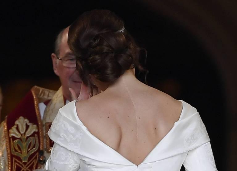 Prinzessin Eugenie ist stolz, dass sie ihre schwere Krankheit überwunden hat. Das Brautkleid versteckt ihre OP-Narbe daher auch nicht.  ©imago/PA Images