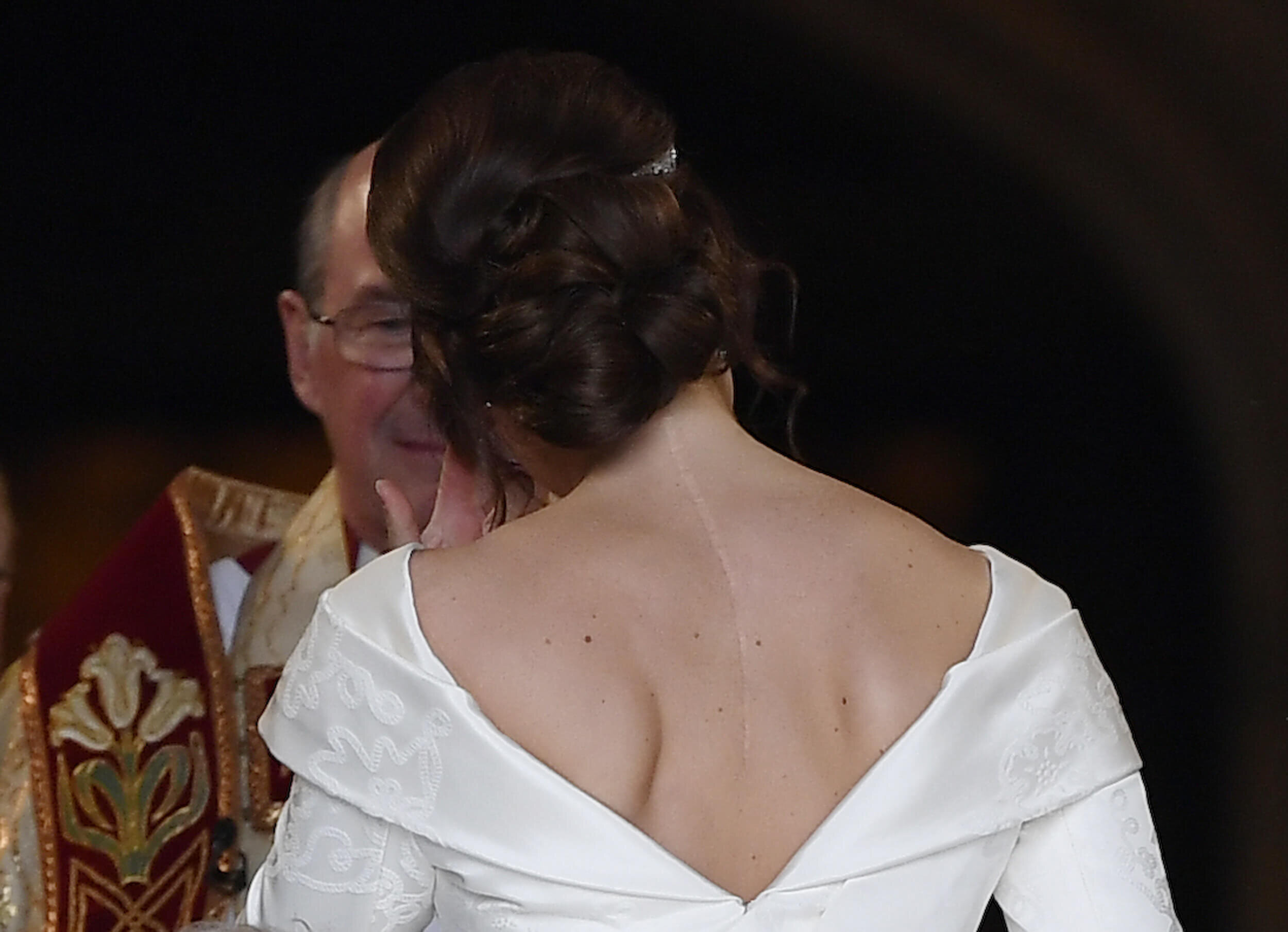 Eine tolle Botschaft an alle Betroffenen: Prinzessin Eugenie zeigt deutliche ihre Operationsnarbe.  © picture alliance / empics