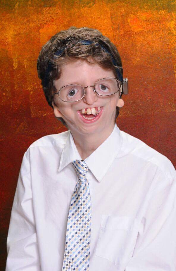 Bobby Nawrath-  The foundation helped fund facial reconstructive surgery for Bobby.