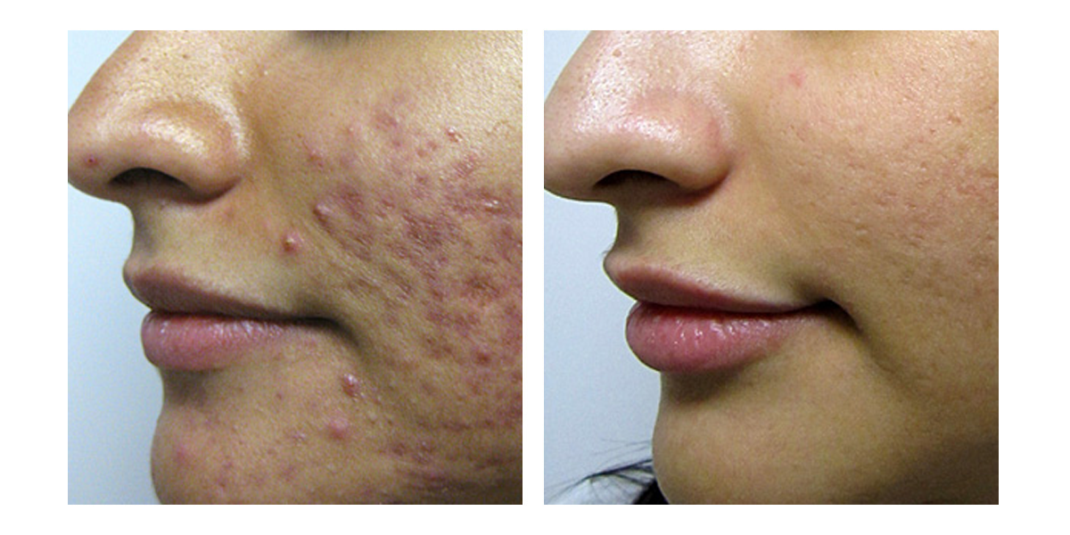 Acne - 3 months post treatment with Vivant Skincare