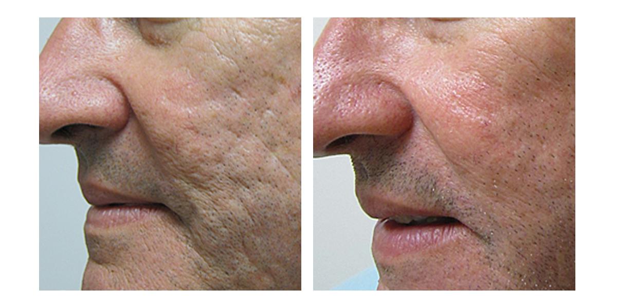 Skin Rejuvenation - Post 6 months with Vivant Skincare