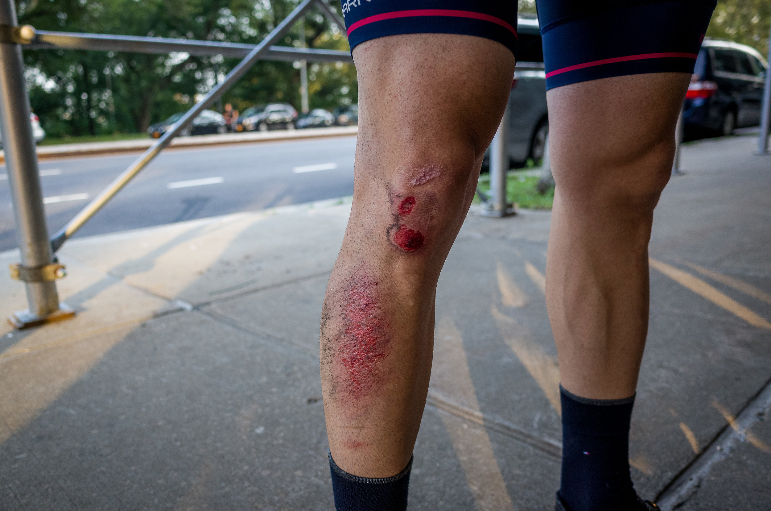 Early start + running late + freshly washed street = skin donation. Thankfully no bikes were harmed.