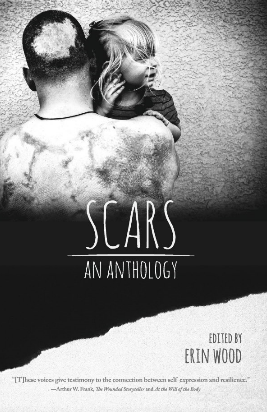 SCARS FRONT COVER FOR SITE.PNG