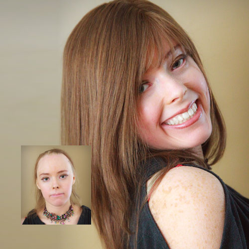 female hair loss replacement minneapolis mn
