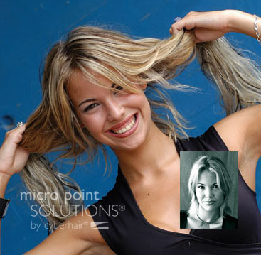 Micro Point Links Hair Replacement Minneapolis