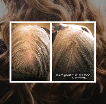 Female hair loss additions integration minneapolis