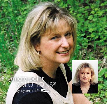Female hair loss solutions Minneapolis