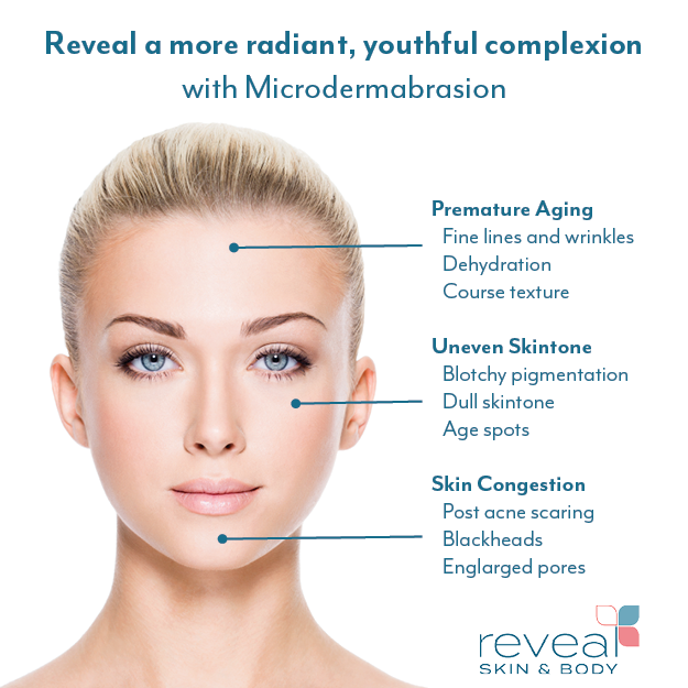 microdermabrasion at Reveal Skin and Body