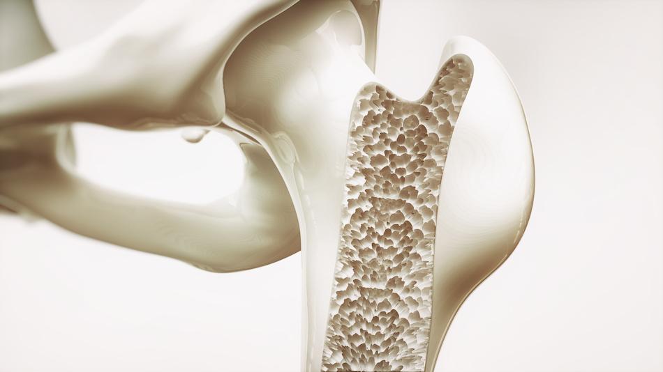 Poor diet and lifestyle leach calcium from bones