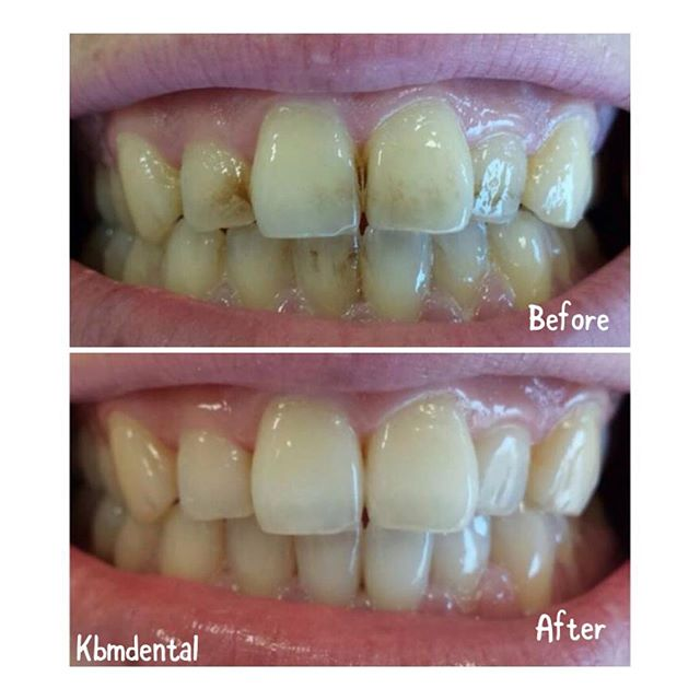 Are you a coffee drinker or a smoker and have stains on your teeth ? We can fix that. Call KBM dental on 01-4957844