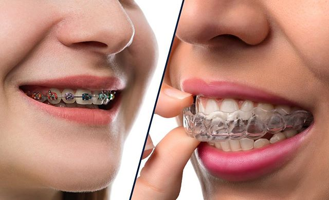 FREE consultations with Orthodontist  Dr . Ronan  Perry for Invisalign on Tuesday April 10th, April 24th, May 8th and the May 22nd call 01 4957844