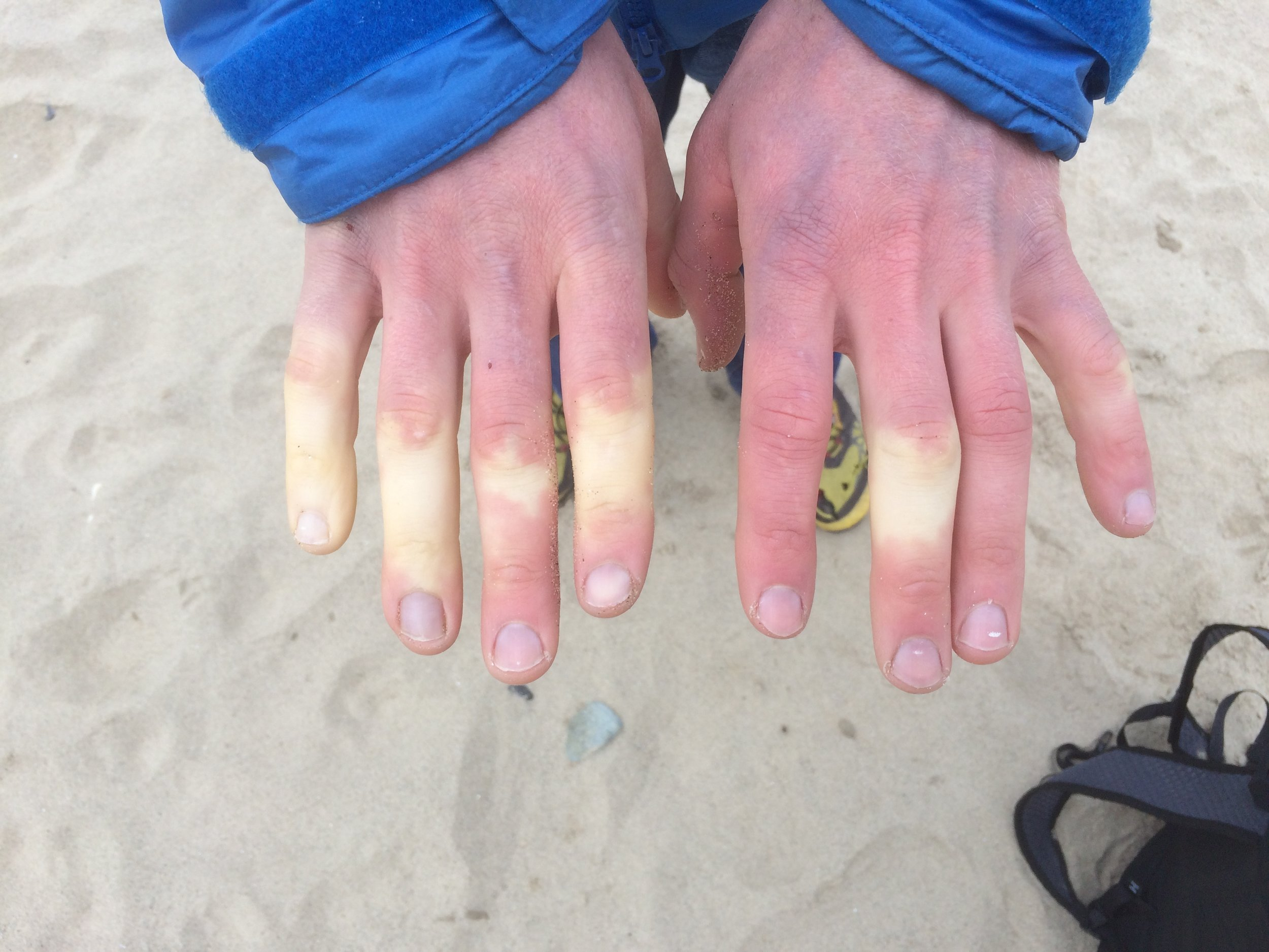 My cold hands on the beach (after warming them up a bit!)