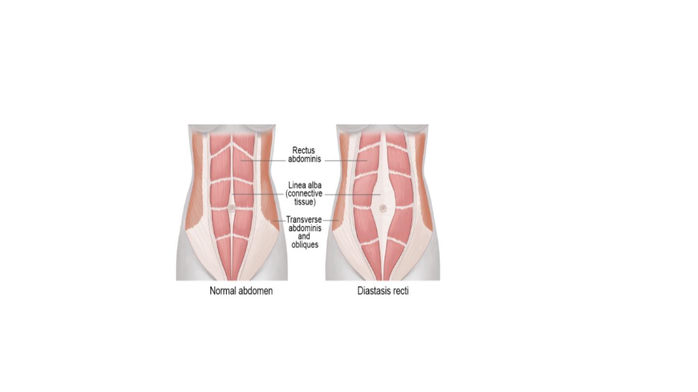 diastasis recti pic.png