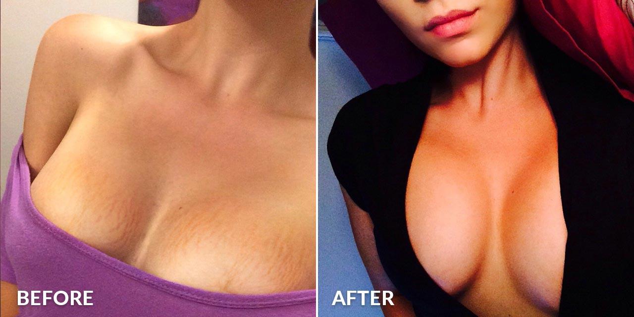 boobie-butter-before-after-3.jpg