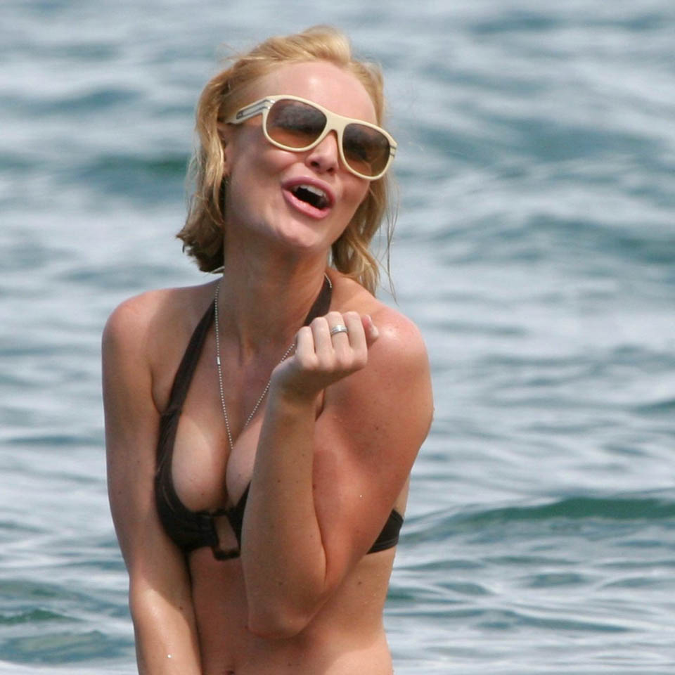 Kate Bosworth Breast Implants