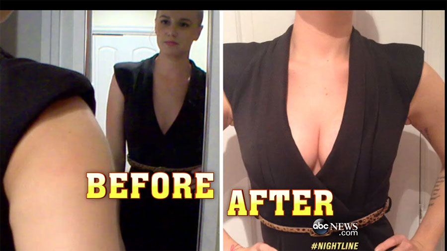 24-hours Saline Breast Enhancement Before and After