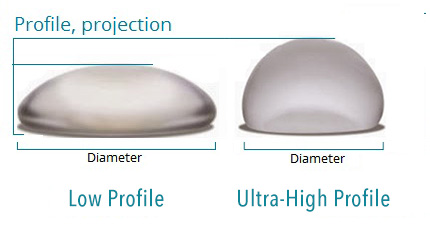 low profile vs high profile breast implants
