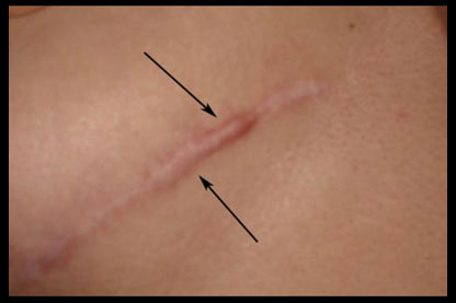 Can I prevent Keloid Scarring after Breast Implants?